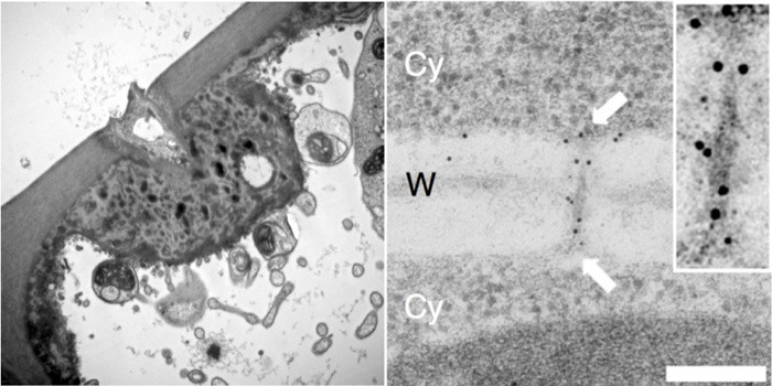 TEM of pathogen infection site and plasmodesmata