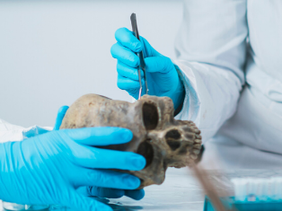 Person wearing forensic gloves examining a skull