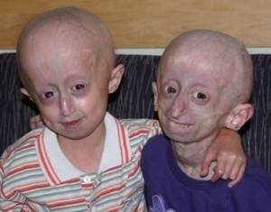 Boy and girl with progeria. Progeria Research Foundation